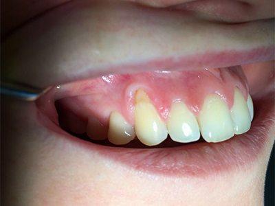 Zahnfleischtransplantation vorher